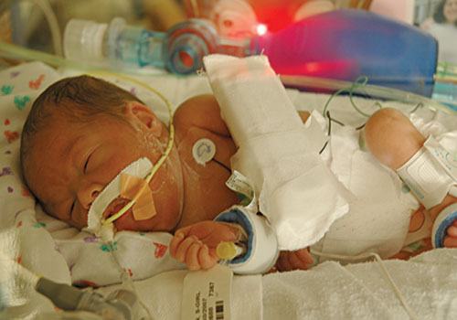 Kailyn, one-month-old, in the NICU.